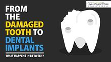 From The Damaged Tooth To Dental Implants: What Happens In Between?