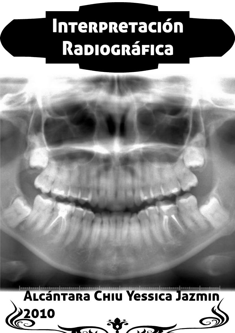 Interpretación Radiográfica Vol. 1