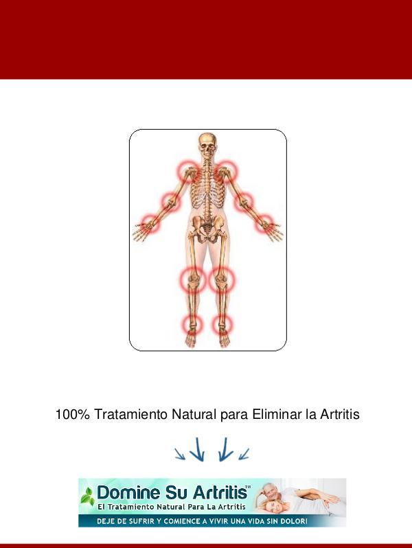 ⒺⓈ » Domine Su Artritis PDF-Libro, Ricardo Palmer