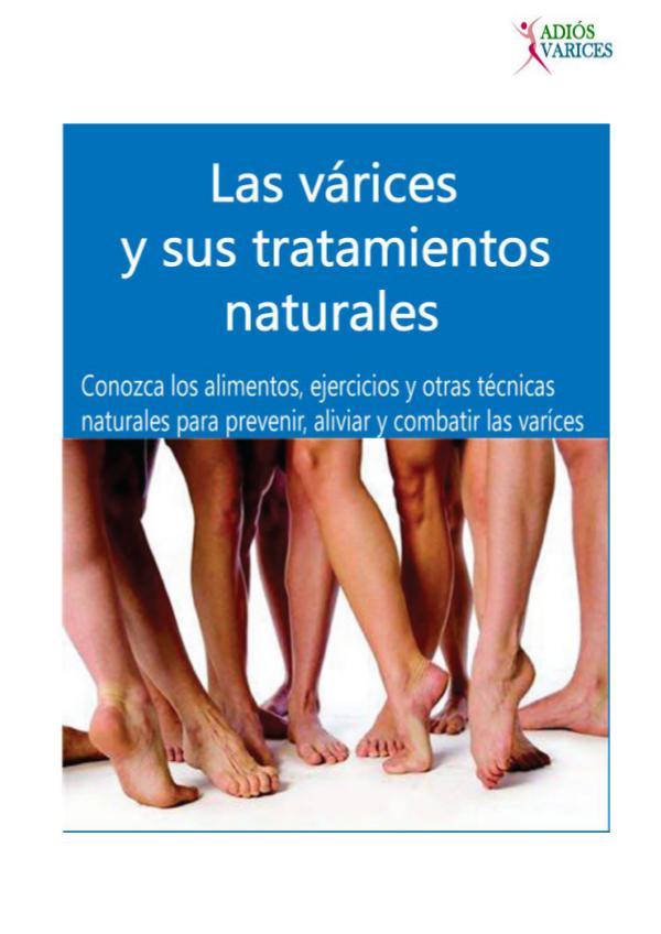 ⒺⓈ » Basta De Várices PDF-Libro, Alejandra Godínez