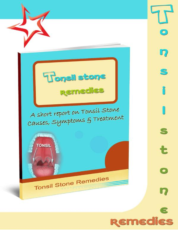 ⓃⒶⓉⓊⓇⒺ » Fast Tonsil Stones Cure PDF-eBook, Allen Thompson