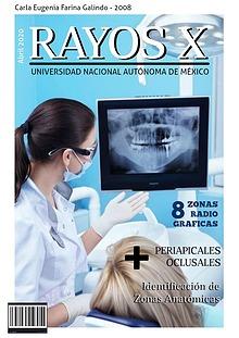 Zonas radiográficas en Odontología